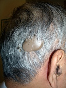 Photo 7 First VSB Middle Ear Implant